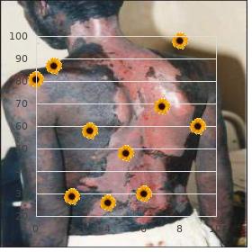 Mastroiacovo Gambi Segni syndrome