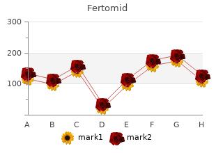 generic 50mg fertomid amex