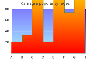 order 50 mg kamagra amex