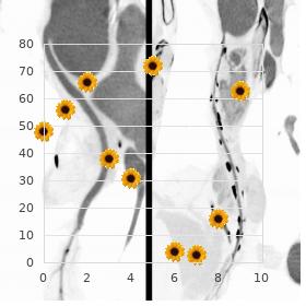 Thoracolaryngopelvic dysplasia