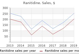 ranitidine 150 mg generic
